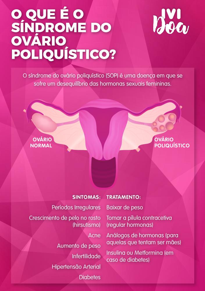 sindrome ovario policistico-tratametos